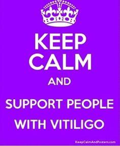 Vitiligo!