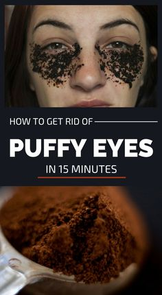 How To Get Rid Of Puffy Eyes In 15 Minutes is part of Puffy eyes - Fatigue, stress, inappropriate nutrition is the main factors that affect the skin and its look It s Dry Eyes Causes, Under Eye Bags, How To Get Rid Of Bags Under Eyes, Tired Eyes, Puffy Eyes, Stress, Cool Eyes, Skin Care Tips, Beauty