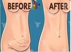 Receita Consuma por 30 dias: esta mistura vai fazer você perder até 6kg e muita cintura em apenas 1 mês!