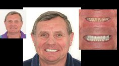 Complete restoration with porcelain crowns to balance bite and improve smile. Cosmetic dentistry by Dr. Mike Maroon of Advanced Dental in Berlin, CT.