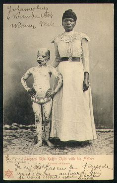 Vasta Images/Books: FREAKS Sideshow Attractions Postcards 1900-1920