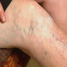 How To Treat Varicose Veins Using Home Remedies