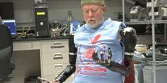 人間の神経系に直接接続して動かせる義手が完成