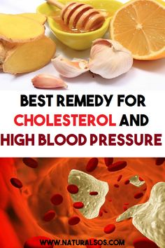 Watch This Video Captivating Clear Blocked Arteries with Natural Health Remedies Ideas. Splendid Clear Blocked Arteries with Natural Health Remedies Ideas. What Causes High Cholesterol, Lower Your Cholesterol, Reducing High Blood Pressure, Lower Blood Pressure, Holistic Remedies, Natural Health Remedies, Natural Cures, Upper Stomach Fat, Banana Drinks