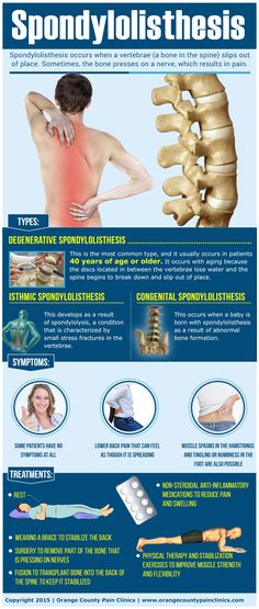 Mission Viejo, CA, 92691 – Pain Management – This infographic explains spondylolisthesis and its treatments. Clinique Chiropratique, Spinal Decompression, Degenerative Disc Disease, Spine Health, Ankylosing Spondylitis, Medical Information, Anatomy And Physiology, Pain Management, Neck Pain