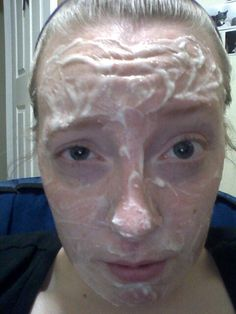 Egg white and baking soda exfoliating mask. Take the white of one egg and mix with baking soda till you get a thick paste. Leave on until dry. I followed up with my usual nightly routine of after exfoliating put on raw honey and leave for ten minutes. Rinse off and pat dry your face leaving some moisture then follow up by washing with lush charcoal face soap. Then lush toner. Acne spot creme and then a thin layer of coconut oil.