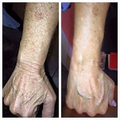 Would you like to reverse the signs of aging on your skin? Get rid of those dreaded 'age spots'?? Nerium Firming Cream is a simple lotion that will deliver these results for you guaranteed! Get your results started today! #FollowLauraLives #cellulite #smoothskin