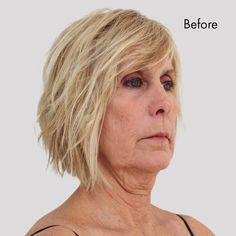 Facelift Without Surgery, Brown Spots On Hands, Hair Cuts For Over 50, Natural Face Lift, Instant Face Lift, Older Bride, Neck Lift, Brow Lift, Try On Hairstyles