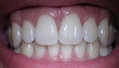 How To Make Your Receding Gum Line Grow Back
