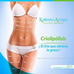 Criolipólisis | Frío que elimina la grasa | Kalieska Arroyo