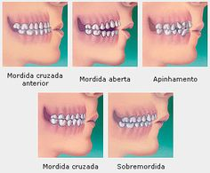 indicacao aparelho ortodontico