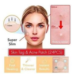 Skin Tag & Acne Patch - Hydrocolloid Acne and Skin Tag Remover Patches Acne Skin, Oily Skin, Acne Scars, Skin Care Regimen, Skin Care Tips, How To Get Rid Of Acne, How To Remove, Tag Remover, Skin Tag Removal