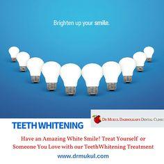 Dr. Mukul Dabholkar's Dental Clinic offers advanced Cosmetic Dentistry involving immediate Teeth Whitening and Bleaching