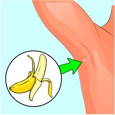 How to Remove Annoying Papillomas and Warts Once For All Health And Nutrition, Health And Wellness, Health Tips, Health Fitness, Herbal Remedies, Home Remedies, Dieta Detox, Warts, Medicinal Herbs