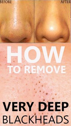 five Simple Dwelling Treatments To obtain Rid Of Skin Warts #SkinWartsOnFace #HowToGetRidOfWartsOnToes #SkinWartsHistology #RemoveWarts