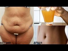 NO-EXERCISE LOSE SAGGING BELLY FAT IN JUST 7 DAYS WITH THIS DRINK - YouTube