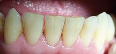 Dental Tips for this Chinese New Year – beamglo Teeth Implants, Dental Implants, Dental Hygienist, Dental Care For Kids, Cracked Tooth, Teeth Pictures, Emergency Dentist, Dental Crowns, Best Dentist