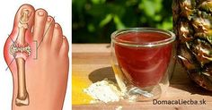 The gout is an issue that is seen in people who have digestion problems since the uric acid makes arthritis in the small bones and joints in the feet. Other gout effects are swelling and Colon Cleanse Detox, Natural Colon Cleanse, Gout Remedies, Natural Health Remedies, Gota A Gota, Gout Recipes, Types Of Arthritis, Uric Acid, Recipes