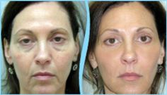 PRP face lift results