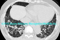 10. 間質性肺炎 症例094:皮膚筋炎に伴う間質性肺炎 CT,『コンパクトX線アトラスBasic 胸部単純X線写真アトラス vol.1 肺』 Radiology