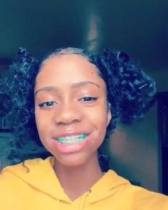 Cute Girls With Braces, Cute Braces Colors, Kids Braces, Teeth Braces, Cute Black Guys, Pretty Black Girls, Dental Braces, Braces Tips, Braces Bands