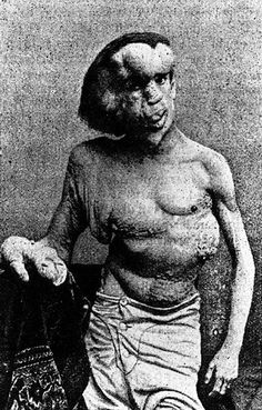 The Elephant Man (Joseph Merrick) is probably the most famous case of Proteus Syndrome.  The disease causes excessive bone growth, excessive skin growth, and frequently comes with tumors.