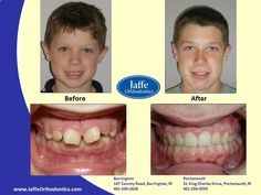 Elias Orthodontics, Portsmouth, King Charles, Photos, Pictures, Cake Smash Pictures
