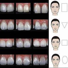 Giraffe Facts, Dental Quotes, Dental Anatomy, Dental Surgeon, Dental Technician, Smile Makeover, Dental Art, Cosmetic Dentistry, Teeth