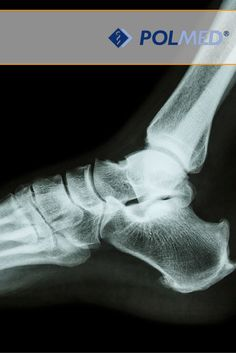Czy wiecie że…   #Kości znajdujące się w stopach stanowią aż 25% kości w całym naszym organizmie? :)