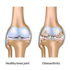 #Arthritis pain is a part of aging. The only Solution is #Knee_Joint_Replacement Surgery.  See More : http://kneejointreplacement.in/Knee-Joint-Replacement.php