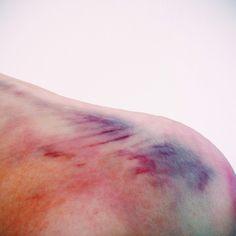 Beautiful Bruises!