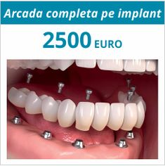 10 Dentist Sector 2 Bucuresti Ideas Dentar Albirea Dinților Trier