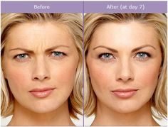 Botox Before & After: Regular Botox treatments help soften fine lines, and prevents future lines and wrinkles from forming.~SculptMD 514.728-5783