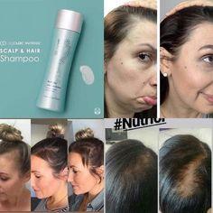 Nutriol Shampoo, Galvanic Spa, Bald Patches, Hair System, Shiny Hair, Anti Aging Skin Care, Beauty Secrets, Body Care, Nu Skin