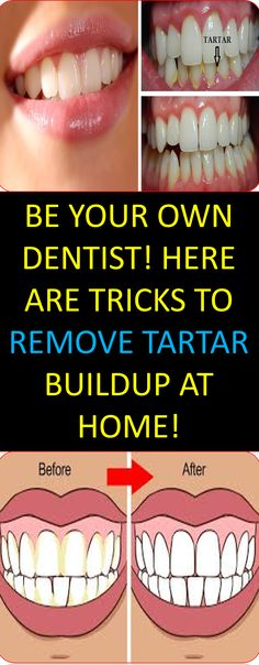 Tartar is the yellow or brown mineral deposit on teeth, which can lead to periodontitis, especially if it increases and without removal....