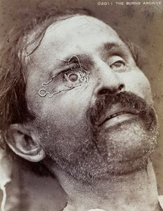 """TEACHING EYE SURGERY WITH CLOSE-UP PHOTOGRAPHY, 1870  In 1870, a French ophthalmologist named Edouard Meyer included a series of photos in his textbook on surgery. The film of the era was too """"slow"""" to take photos of actual operations, so he staged photos using cadavers. In this photo, a clamp holds the eye open to show where a scalpel should be positioned to remove a cataract."""