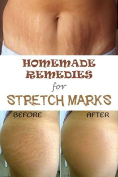 Natural Remedies DIY: 5 Effective Home Remedies for Stretch Marks - Stretch marks are unaesthetic marks that usually appear in areas with fat deposit, such as abdomen or hips, after a sudden weight loss. Over time they turn from pink or red to white. Health And Beauty Tips, Health And Wellness, Wellness Tips, Beauty Care, Beauty Skin, Home Remedies, Natural Remedies, Health Remedies, Stretch Mark Remedies
