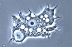 Acanthamoeba can cause keratitis (eye infections) by dwelling contact lenses rinsed with tap water or not cleaned properly.