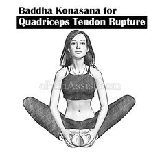 Yoga Badhakonasana for Quadriceps Tendon Rupture