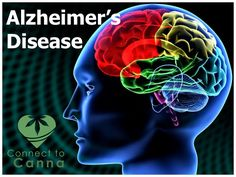 Could medical marijuana treat Alzheimer's patients? One recent study found THC, the psychoactive ingredient in cannabis, stimulates the removal of toxic plaque in the brain, a common feature of the Alzheimer's disease. Here is the way to cure it:   http://www.connect2canna.com/contact/  #Alzheimer #MarijuanaTreatment #Medicines #marijuana #cannabis #Diseases #Hospital #Medicine #treatement #cannabinoids #THC #CBD #herb #cannabiscommunity #cannabisculture #socialcannabis #medicalcannabi…