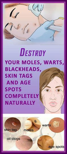 These skin issues often result from hormonal imbalance, unhealthy lifestyle or simply genetics. But, the list of causes is much longer......