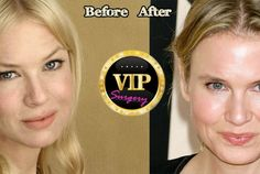 Surgery VIP is the address for all celebrity plastic surgery questions. in dept reviews about each celebrity with before and after pictures.