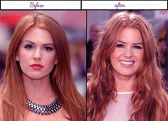 5 photos of Isla Fisher following in advance of plastic surgery 2014 - Isla Fisher deserves every sing good thing in life' most especially after she has gone through difficulties in her life before she reached the famous state she is at now. Who would have thought that a beautiful actress has gone through dark past; specifically' bullying experience...  http://www.aftersurgerypics.com/5-photos-of-isla-fisher-following-in-advance-of-plastic-surgery-2014/