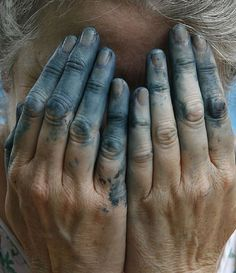 Dyed fingers