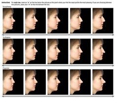 nose types with pictures | ... surgeon and determine what the ideal nose shape is for your face