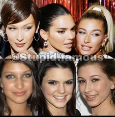 Plastic Surgery Photos, Celebrity Plastic Surgery, Bella Hadid, Kendall Jenner, Health And Beauty, Hair Makeup, Photo And Video, Celebrities, Face