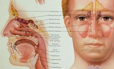 Chronic Sinusitis- The First Time Western Medicine Failed Me. Reclaim your health with natural medicine.