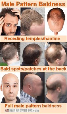 How does male pattern baldness develop? Only skull expansion can explain how the classic signs of balding cause this extreme type of hair loss. Baby Hair Loss, Oil For Hair Loss, Stop Hair Loss, Best Hair Loss Shampoo, What Causes Hair Loss, Bald Men With Beards, Natural Hair Regrowth, Androgenetic Alopecia, Best Hair Loss Treatment