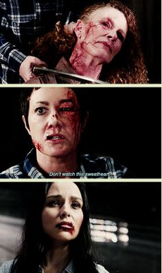 [GIFSET] 9x19 Alex Annie Alexis Ann - Some awesome special effects and make up in this episode!