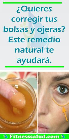 Watch This Video Beauteous Finished Cystic Acne Home Remedies that Really Work Ideas. Divine Cystic Acne Home Remedies that Really Work Ideas. Beauty Hacks For Teens, Luscious Hair, Home Remedies For Hair, Natural Beauty Tips, Natural Makeup, Clean Face, Facial Care, Tips Belleza, Hair And Beauty